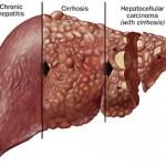 Điều trị ung thư gan thành công bằng hạt vi cầu phóng xạ - Ảnh 1