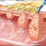 Ung thư dạ dày: Khó phát hiện, tử vong cao - Ảnh 1