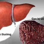 Những người nào dễ mắc bệnh ung thư gan?
