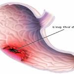Ung thư dạ dày: Ai dễ mắc?