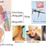 Ung thư vòm mũi họng: Hiểu đúng để phòng ngừa
